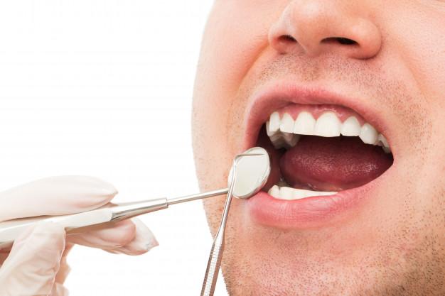 dental financing with bad credit
